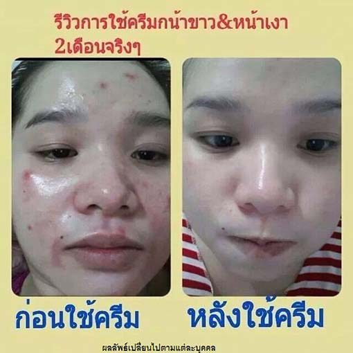 รีวิว princess skin care